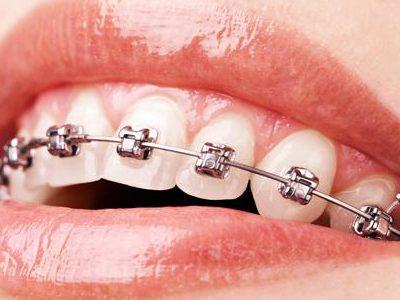 ortodonti-imaj